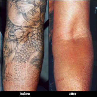 Tattoo removal toronto the baywood clinic for Tattoo removal clinic